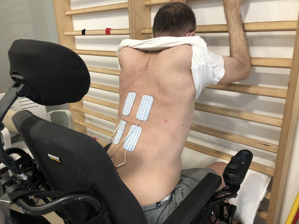 Beneficios de la Estimulación muscular en pacientes con lesiones medulares